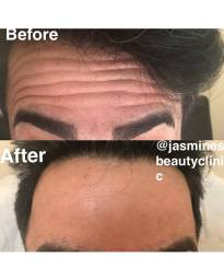 antiwrinke injection, botox, before and after