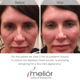 Before and after Juvederm Voluma dermal filler