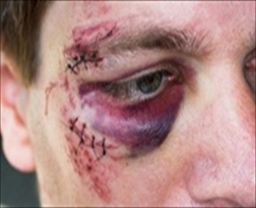 Criminal Injury Compensation