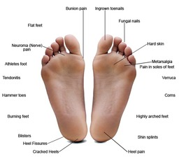 Do your feet suffer from any of these conditions?