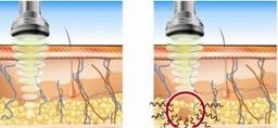 Lipo cavitation process